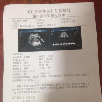 我怀孕前四个月胎儿发育都正常25周做4维,医院图片