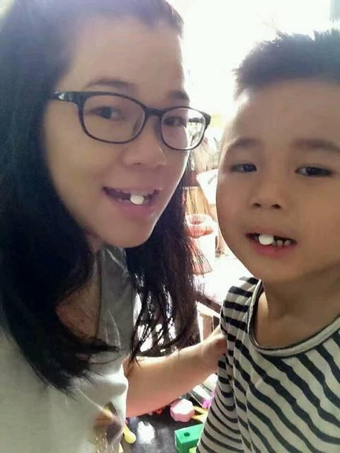 宝宝4岁牙齿变黑黑的,是蛀牙吗?_朋友推荐固体