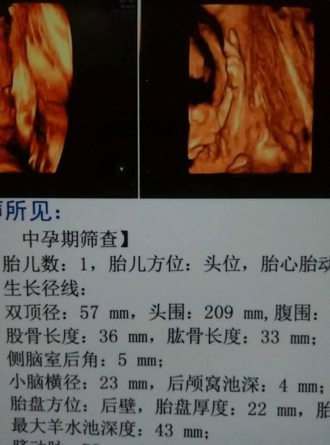 四维彩超 孕23周四维彩超结果显示宝宝腿不是很长 还能补嘛图片