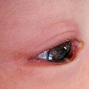 宝宝三个月了,左眼最近突然老流泪,眼眶红肿,眼睛不红