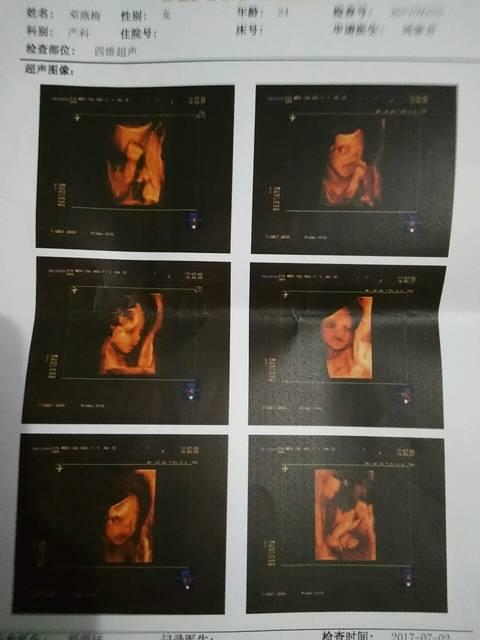 四维彩超图片 我怎么感觉我上当了,,我的四维彩超图是这样的,图片