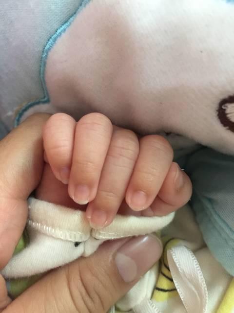 有刚出生的宝宝指甲底发紫的吗